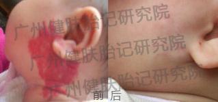 广州健肤看血管瘤的技术怎么样