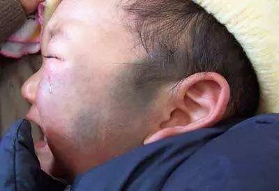 小孩有太田痣广州哪个医院看的好