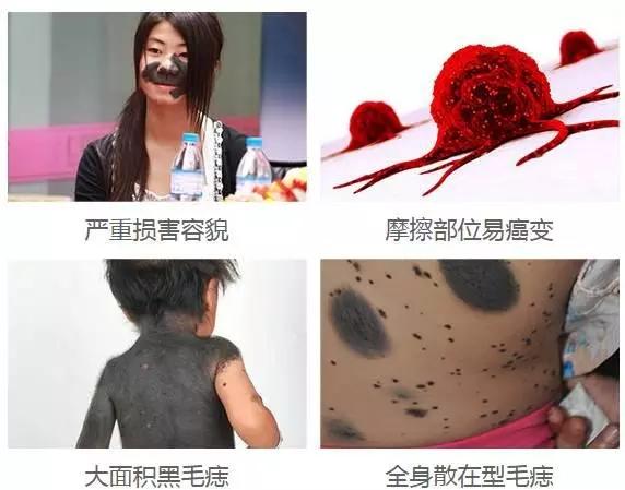 广州看黑毛痣哪家医院比较好