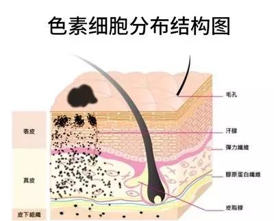 广州激光治疗太田痣有效果吗