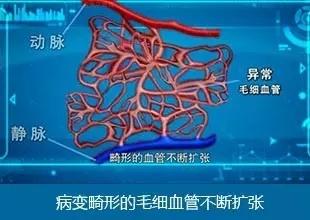 广州健肤治疗血管瘤大概多少钱