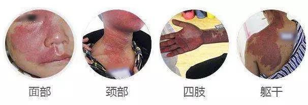 广州鲜红斑痣治疗费用高吗