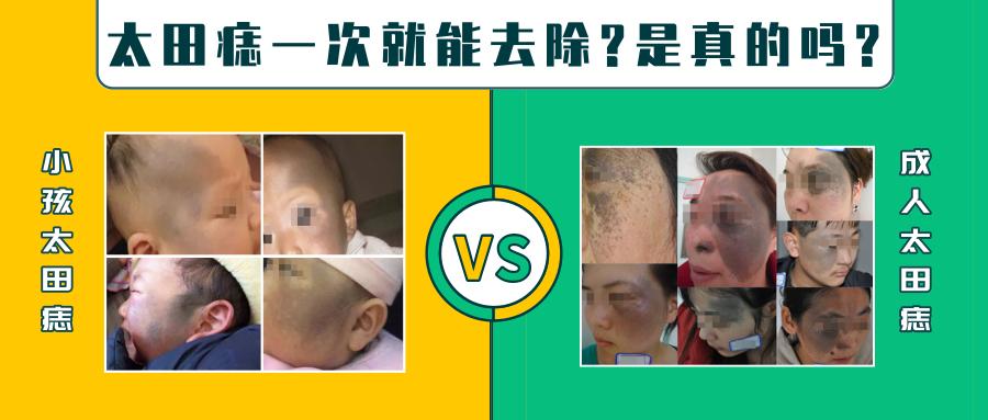 广州治疗太田痣哪家医院可靠