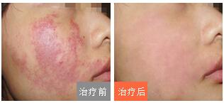 广州有治疗鲜红斑痣的医院吗