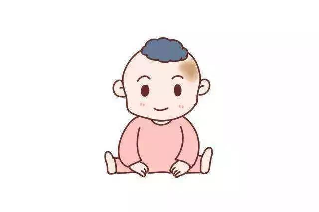 广州治疗胎记最有效的方法
