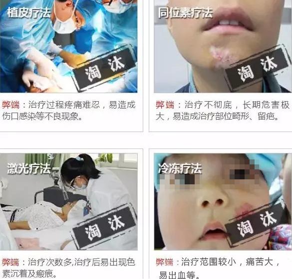 广州治疗太田痣医院哪家靠谱
