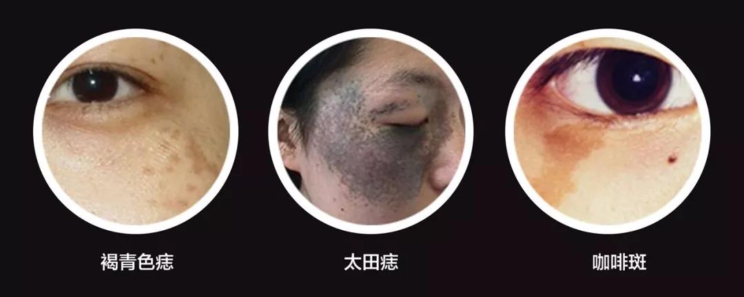 广州哪个医院能去太田痣