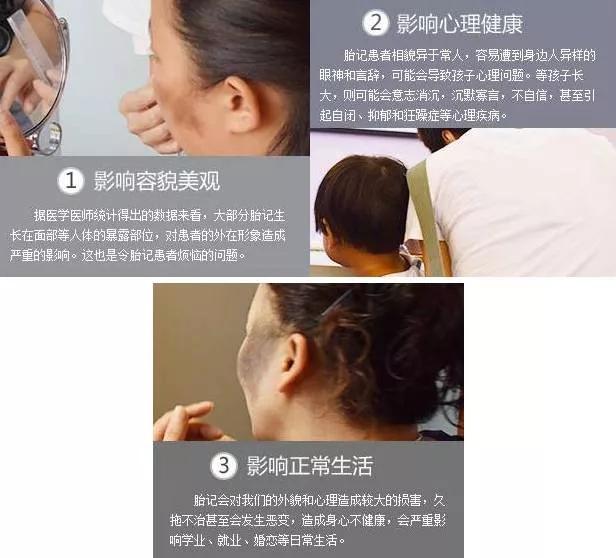 广州激光去胎记哪家专业