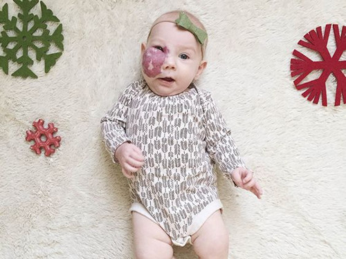 小孩血管瘤真的会越长越大吗