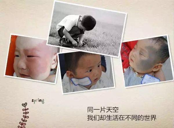 宝宝的胎记是什么原因