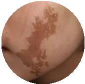 健肤专科治疗咖啡斑靠谱吗